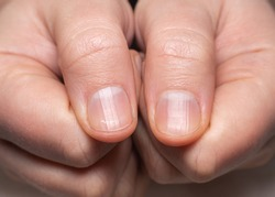 Right and left hand showing ridged nails on thumbs. Caucasian woman, short cut nails.