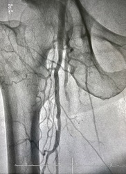 Right femoral artery angiogram at cardiac catheterization room.