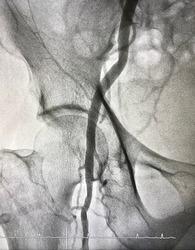 Right femoral artery angiogram at cardiac catheterization room.