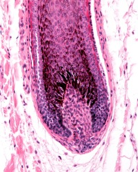 Root hair of a hair follicle showing a enlargement (hair bulb), with the dermal papilla. The hair matrix show many melanocytes with cell processes loaded with melanin granules.
