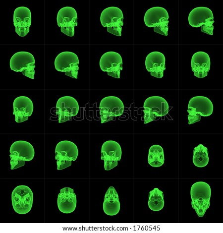 Rotated sequence of x-ray skull images. Can be used to create an animated sequence.