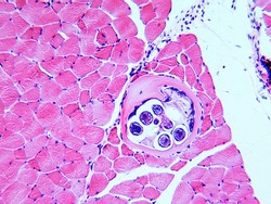 Round worm Trichinella spiralis, nematode larval cyst in muscle tissue (large spherical), light micrograph, X50