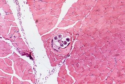 Roundworm Trichina spiralis (Trichinella spiralis), nematode larval cyst in muscle tissue (large circle), light micrograph, magnification X40