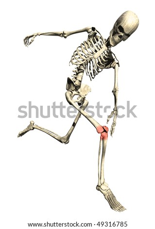 Running skeleton with sore inflamed knee on white background