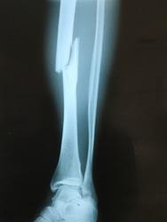 Sabu Raijua General Hospital, Sabu Raijua Regency, East Nusa Tenggara, Indonesia. Photo taken 15 July 2020: X-Ray picture show fracture of tibia bone oblique type, lateral side position x-ray picture.