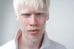 Sad albino man white skin hair studio dressed t-shirt isolated white background. abnormal deviations. unusual appearance. skin abnormality Beautiful people with  special appearance.
