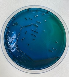 Salmonella spp. on HE agar is Green or blue and have or don't have a black center of colony