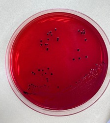 Salmonella spp. on XLD agar is pink color and have or don't have a black center of colony