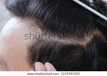 Scalp dandruff hair man #1147443503