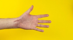 Scar after scaphoid operation on hand on yellow background.