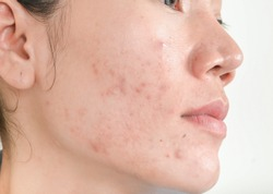 Scar from Acne on face .  and dark spots and skin problems and make-up in women