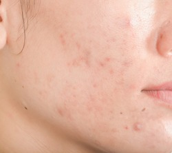 Scar from Acne on face.  Dark spots and skin problems  make-up in women