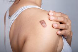 Scar on human skin, keloid on shoulder