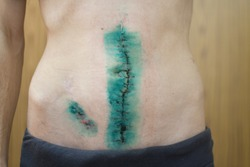 Scars. Crohn's disease. Stitched up wound removal surgery. Incision, postoperative suture. Operative scars in stomach.