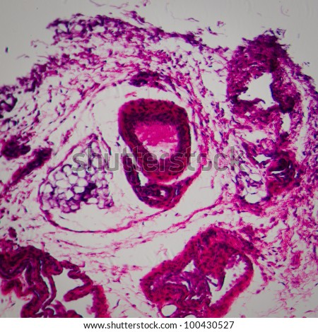 science medical anthropotomy physiology microscopic section of lymph gland tissue background