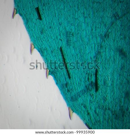 science microscopy micrograph black algae leaf Hydrilla verticillata micro