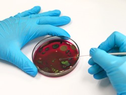 Scientist analysis Escherichia coli (E.coli) culture with Eosin Methylene Blue (EMB) Agar in Petri dish show the metallic green sheen colonies, hold in hands with nitrile gloves with loop inoculation.