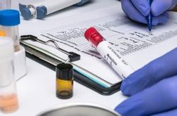 Scientist analyzes listeria sample in laboratory, conceptual image