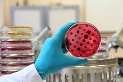 Scientist's hand in white lab coat and blue glove holding an opened Petri dish (plate) loaded with red agar Endo covered by bacterial colonies. Escherichia coli and other enterobacteria colonies.