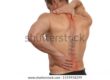 Scoliosis Spine Curve Anatomy, Posture Correction. Chiropractic treatment, Back pain relief. Stock fotó ©