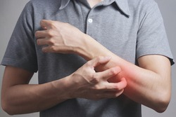 Scratching arm, Itching of skin diseases with young male and have red around the Itching area. Concept Healthcare.