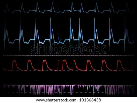 Screen medical monitor. The waves of blood pressure, blood oxygen saturation