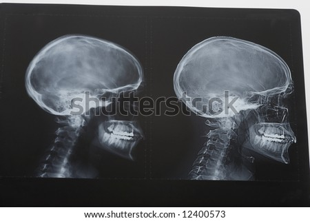 scull x-ray