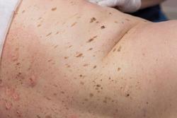 Seborrheic keratosis on human skin before surgery. before surgical removal of seborrheic keratosis with an electric scalpel