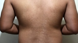 Selective focus of Pityriasis versicolor on the back of men. Pityriasis versicolor is a common yeast infection of the skin, in which flaky discolored patches appear on the chest and back