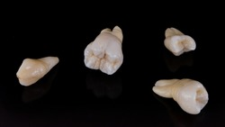 Set of dental crowns model made of ceramic for studying morphology and anatomy of human teeth.