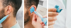 Set of making a custom earplug for a man. Stages of manufacturing earplugs. Doctor makes custom molded ear plugs for the patient. Ear close-up