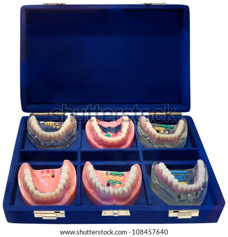 Set of Six Different Color Denture Models
