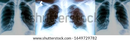 Set of X-ray of a patient's lungs with pronounced traces of the inflammatory process