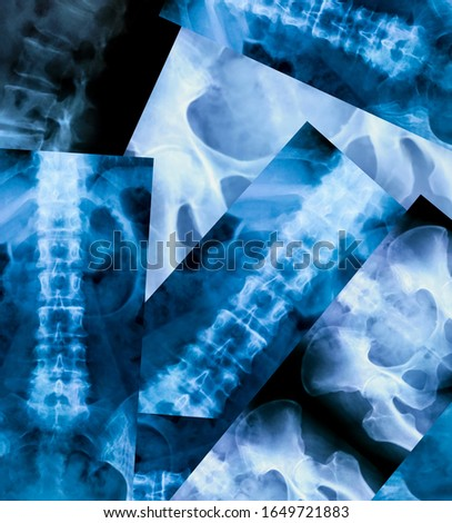 Set of X-ray of the bones of the human lower lumbar part of the vertebral column
