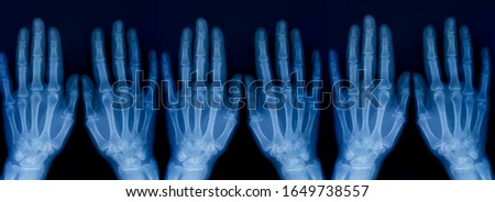 Set of X-ray plate of the bones of the both human hands