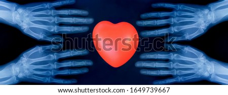 Set of X-ray plates of the bones of the both human hands and red heart sign