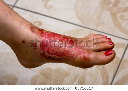 Severe burns in the women