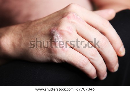 Severe  psoriasis on the hand - close-up