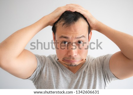 Shocked face of Asian man find himself lost hair and get bald in grey t-shirt. ストックフォト ©