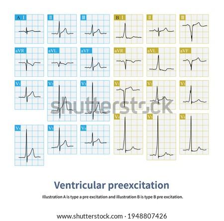 Short PR interval and ventricular preexcitation wave are the characteristics ECG of ventricular preexcitation. Photo stock ©