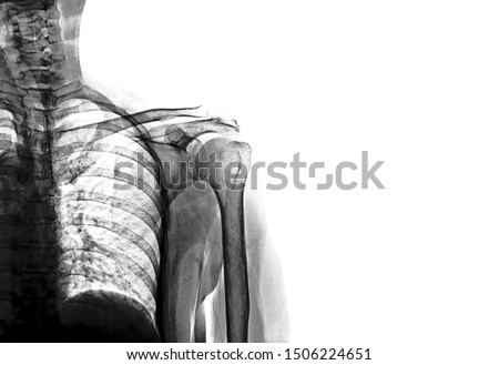 Photo of  Shoulder x ray anatomy radiology. Radiographic Anatomy - Hand AP Medical Coding, Anatomy And Physiology  color on black background
