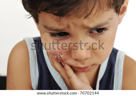 sick kid with scab on his cheek, painful face skin