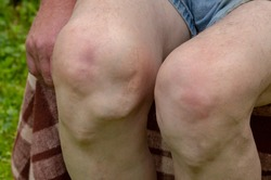 Sick legs of an old man with severely deformed knees affected by arthritis. Joint and bone problems. Arthrosis. Autoimmune diseases.  Health and diseases.Focus on the knees.