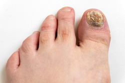 Sick nail on the foot. Toenail fungus on white background. Sore toenail, nail fungus close up.