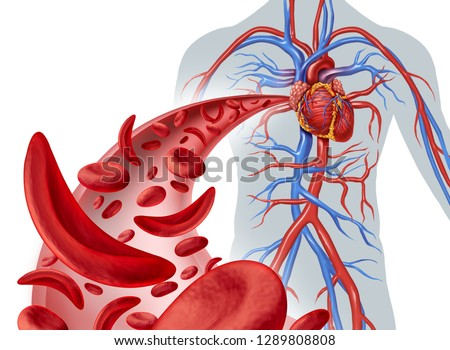 Sickle cell heart circulation and anemia as a disease with normal and abnormal hemoglobin in a human artery anatomy with heart cardiovascular medical illustration concept in a 3D render.