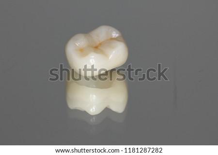 Single zirconium crown with porcelain