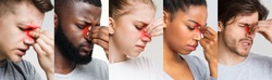 Sinusitis. Collage Of Diverse Sick People Touching Their Nose Bridge With Red Sore Zone, Suffering From Sinus Pain, Panorama