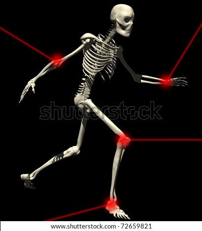 skeleton illustration running with pain point in articulations