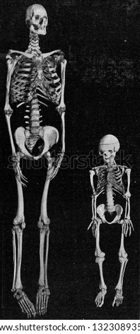 Skeleton of a giant and a dwarf, vintage engraved illustration. From the Universe and Humanity, 1910.