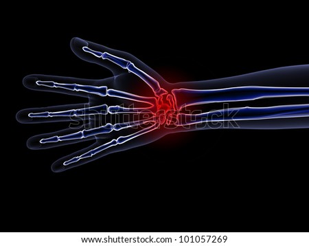 Skeleton X-Ray - Wrist Pain. X-Ray of a hand, wrist and forearm with focus on wrist pain. Isolated on a black background